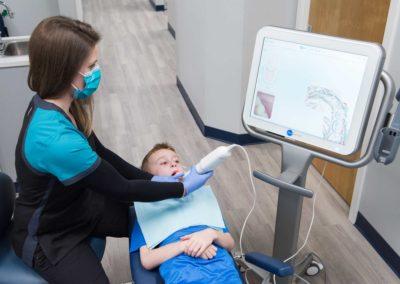 using-itero-scanner-on-child